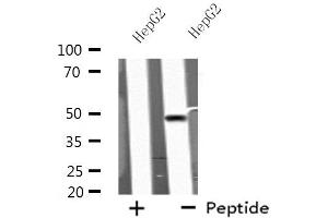 Image no. 2 for anti-Potassium Intermediate/small Conductance Calcium-Activated Channel, Subfamily N, Member 4 (KCNN4) antibody (ABIN6258249)