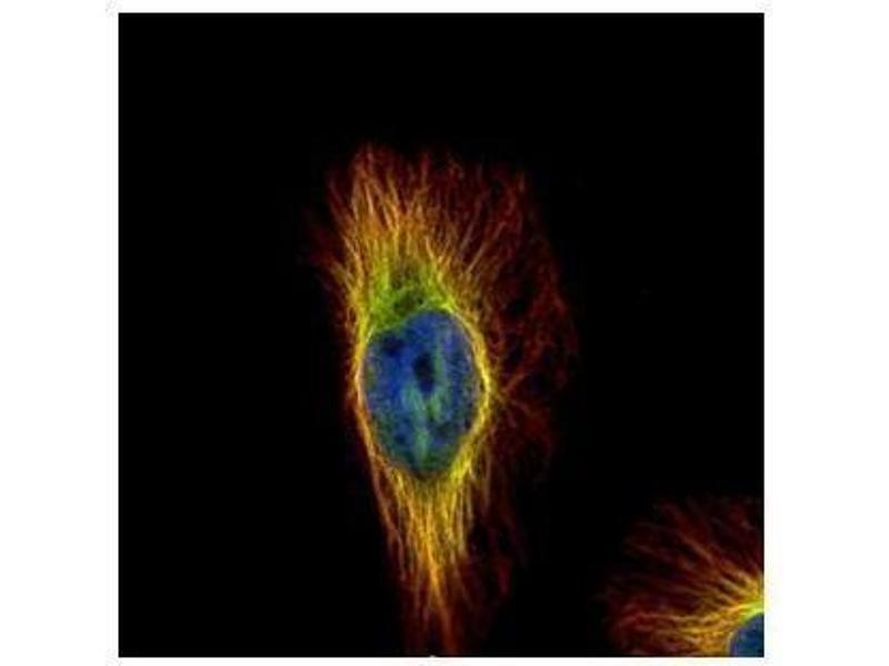 Immunofluorescence (IF) image for anti-Tubulin, beta (TUBB) (Center) antibody (ABIN2854998)