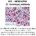 anti-ARHGAP18 antibody (rho GTPase Activating Protein 18) (C-Term)