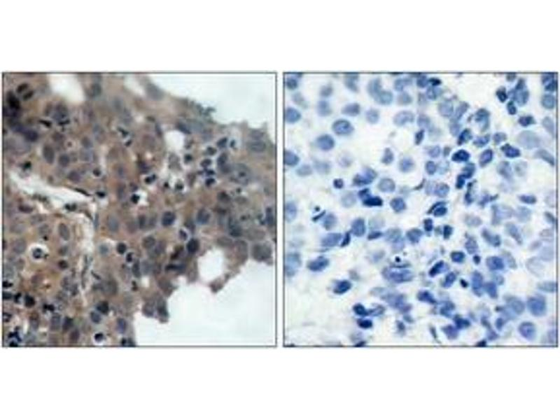 Immunohistochemistry (IHC) image for anti-CDKN1A antibody (Cyclin-Dependent Kinase Inhibitor 1A (p21, Cip1)) (pThr145) (ABIN1531929)
