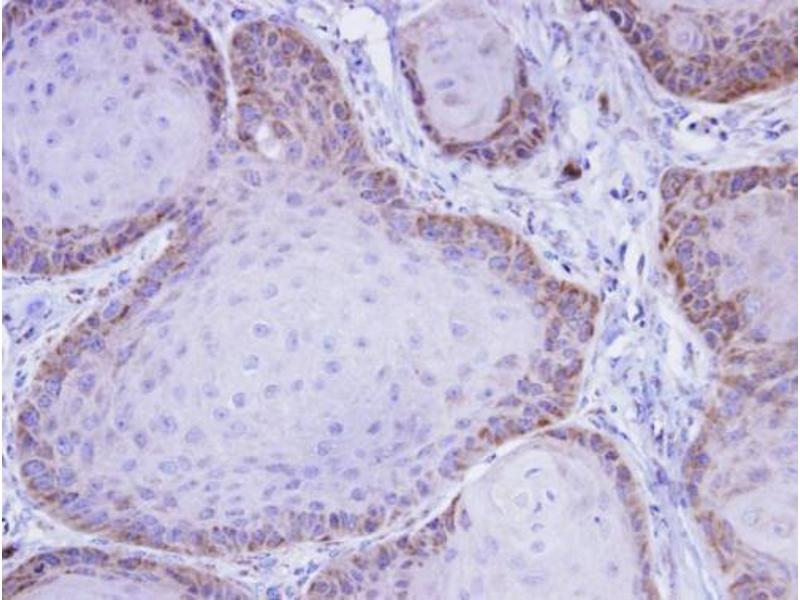 Immunohistochemistry (IHC) image for anti-Mitogen-Activated Protein Kinase Kinase Kinase 8 (MAP3K8) (Center) antibody (ABIN2855466)