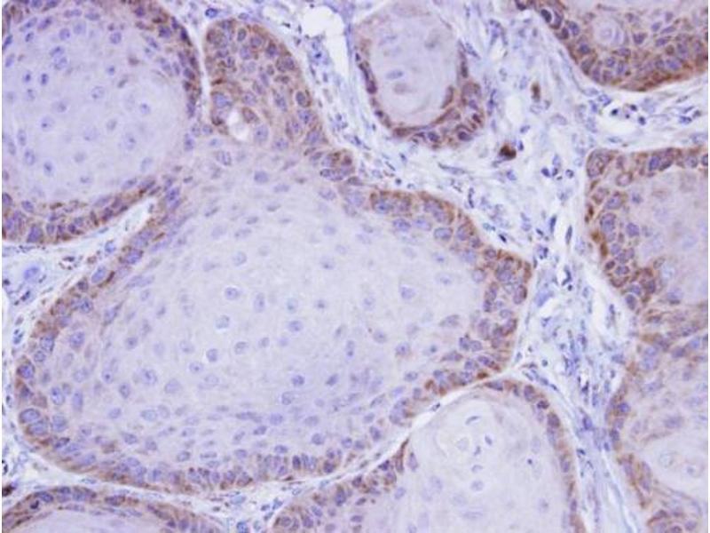 Immunohistochemistry (IHC) image for anti-MAP3K8 antibody (Mitogen-Activated Protein Kinase Kinase Kinase 8) (Center) (ABIN2855466)