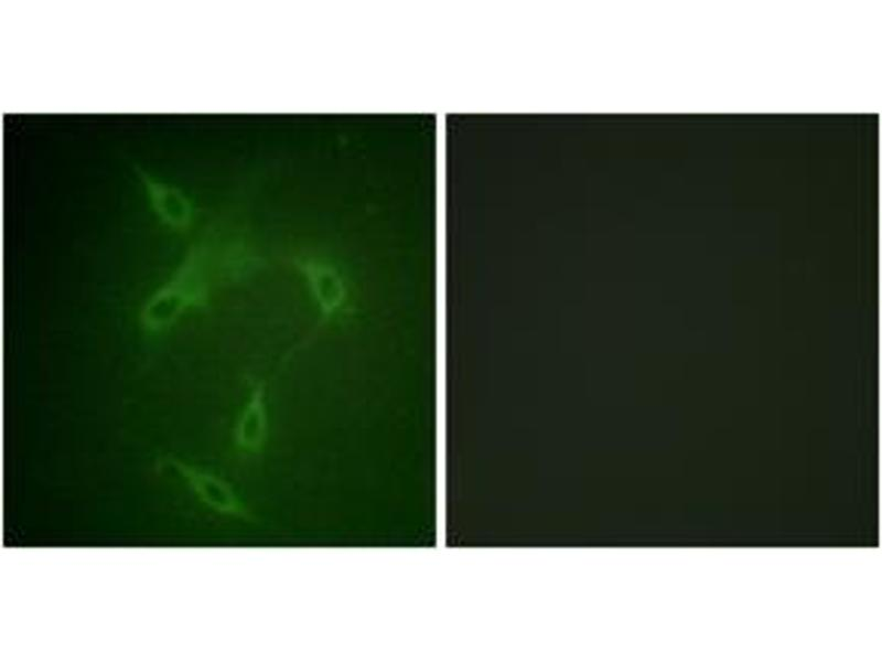 Immunofluorescence (IF) image for anti-JAK2 antibody (Janus Kinase 2) (ABIN1532352)