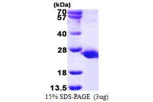 Image no. 1 for Protein Tyrosine Phosphatase, Mitochondrial 1 (PTPMT1) (AA 28-201) protein (His tag) (ABIN667999)