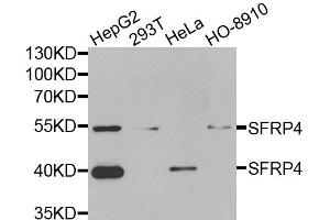 Image no. 2 for anti-Secreted Frizzled-Related Protein 4 (SFRP4) antibody (ABIN6570419)
