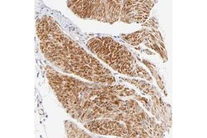 Image no. 1 for anti-Actin-Related Protein T1 (ACTRT1) antibody (ABIN5571967)