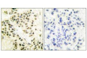 Image no. 2 for anti-Protein Kinase, DNA-Activated, Catalytic Polypeptide (PRKDC) (C-Term) antibody (ABIN1848510)