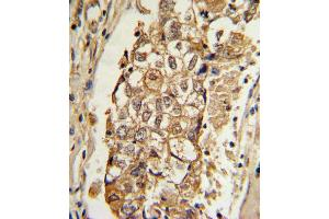Immunohistochemistry (IHC) image for anti-MCL-1 antibody (Induced Myeloid Leukemia Cell Differentiation Protein Mcl-1) (ABIN2448023)