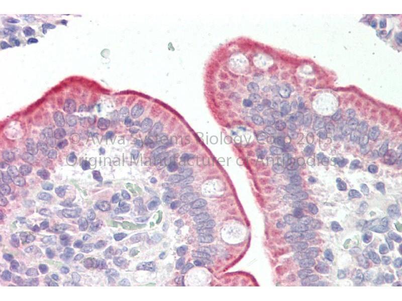 Immunohistochemistry (IHC) image for anti-phospholipid Scramblase 1 (PLSCR1) (Middle Region) antibody (ABIN2791860)