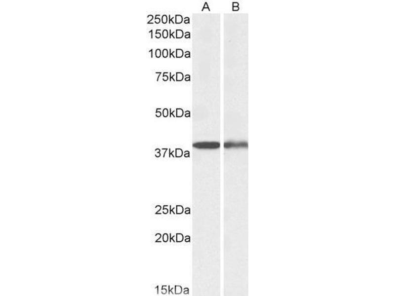 Western Blotting (WB) image for anti-Capping Protein (Actin Filament), Gelsolin-Like (CAPG) (AA 205-217) antibody (ABIN5927115)