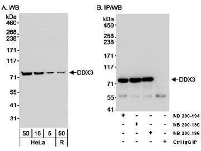 Image no. 1 for anti-DEAD (Asp-Glu-Ala-Asp) Box Polypeptide 3, X-Linked (DDX3X) (AA 1-50) antibody (ABIN152330)