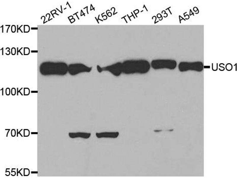 Image no. 2 for anti-rho GTPase Activating Protein 4 (ARHGAP4) antibody (ABIN6569356)