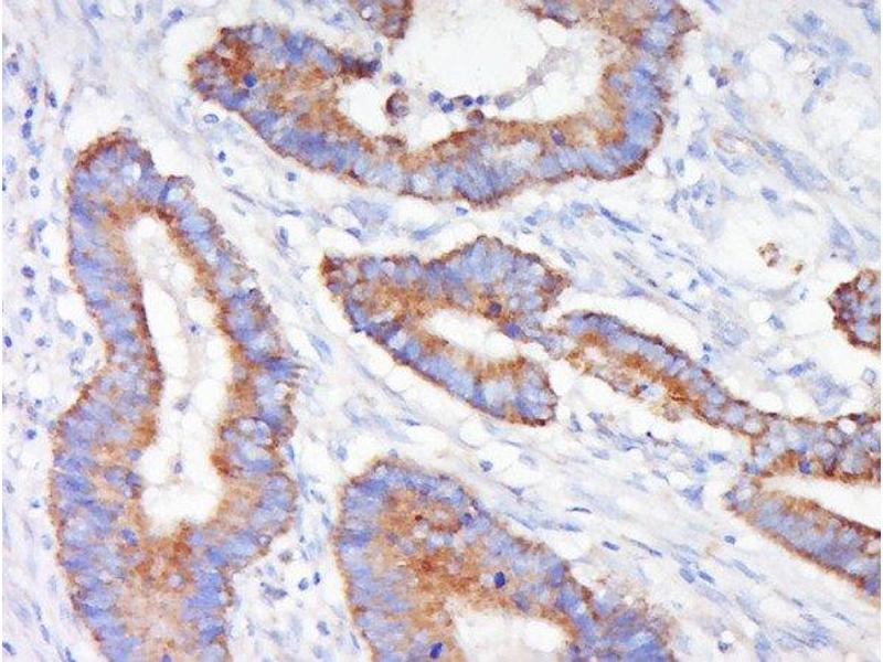Immunohistochemistry (Paraffin-embedded Sections) (IHC (p)) image for anti-MAP2K1 antibody (Mitogen-Activated Protein Kinase Kinase 1) (AA 2-35) (ABIN686482)
