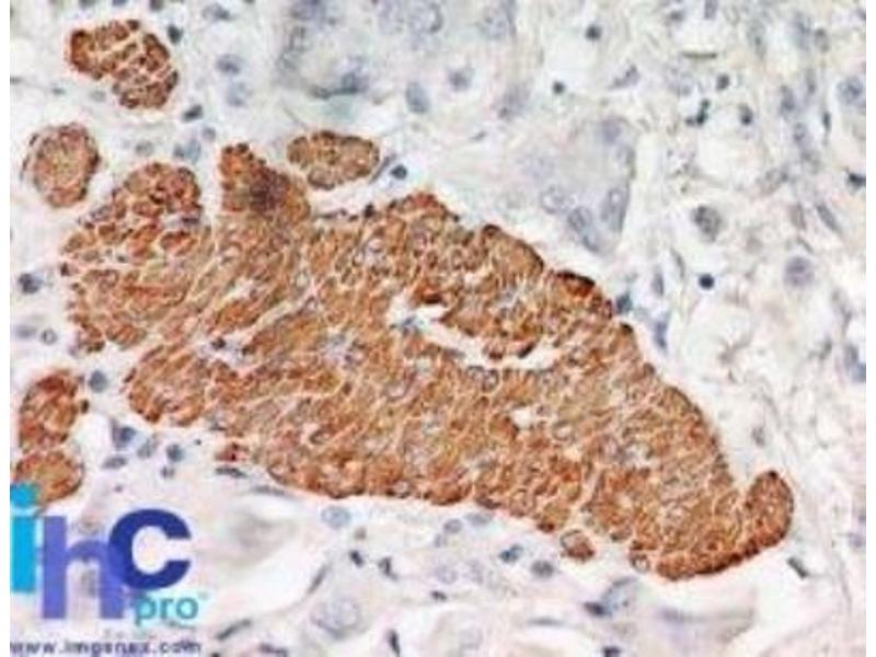 Immunohistochemistry (Paraffin-embedded Sections) (IHC (p)) image for anti-TNF Receptor-Associated Factor 2 (TRAF2) antibody (ABIN252657)