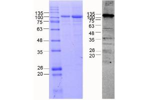 Image no. 1 for Cadherin 8 (CDH8) (AA 62-621) protein (MBP tag) (ABIN3090232)