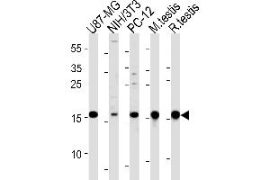 Western Blotting (WB) image for anti-Ubiquitin-Conjugating Enzyme E2L 3 (UBE2L3) (AA 123-153), (C-Term) antibody (ABIN1882145)