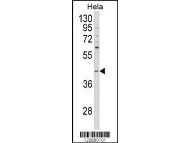 Western Blotting (WB) image for anti-NCK Adaptor Protein 1 (NCK1) (AA 3-29), (N-Term) antibody (ABIN652772)