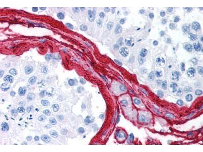 Immunohistochemistry (Paraffin-embedded Sections) (IHC (p)) image for anti-Collagen, Type III (COL3) antibody (ABIN214580)