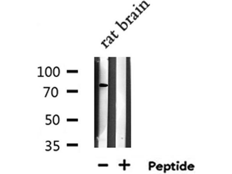 Western Blotting (WB) image for anti-Ring Finger and WD Repeat Domain 2, E3 Ubiquitin Protein Ligase (RFWD2) antibody (ABIN6259497)