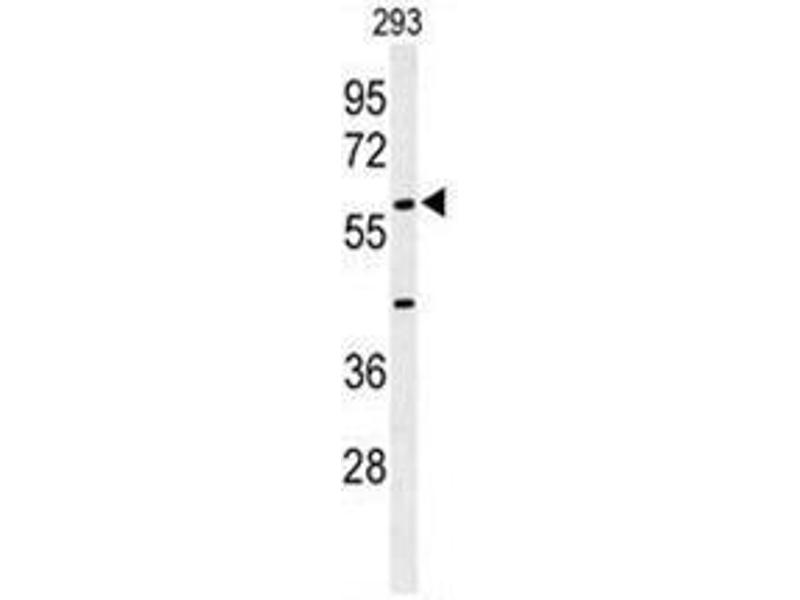 Western Blotting (WB) image for anti-Anti-Mullerian Hormone (AMH) (AA 430-460), (Middle Region) antibody (ABIN950438)
