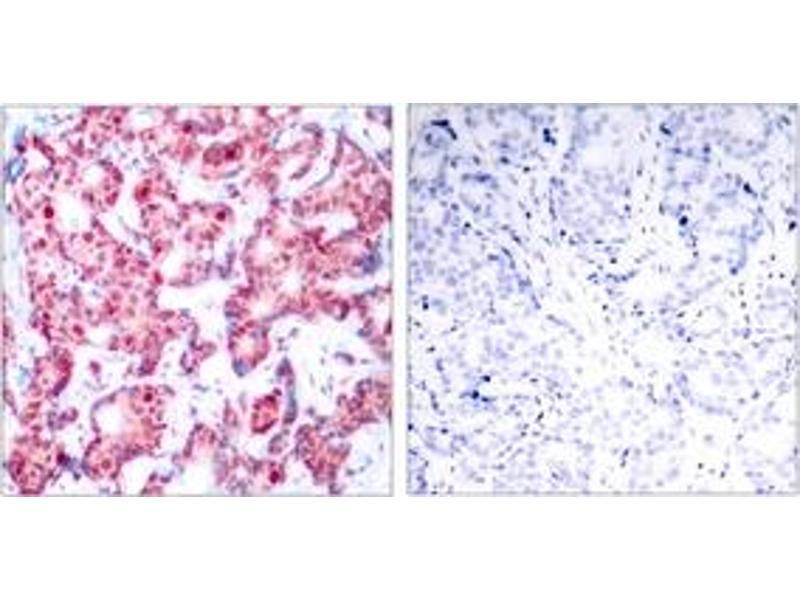 Immunohistochemistry (IHC) image for anti-GATA Binding Protein 1 (Globin Transcription Factor 1) (GATA1) (AA 109-158), (pSer142) antibody (ABIN1531849)