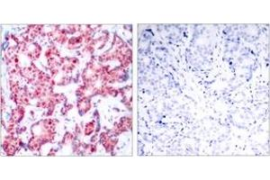 Immunohistochemistry (IHC) image for anti-GATA Binding Protein 1 (Globin Transcription Factor 1) (GATA1) (pSer142), (AA 109-158) antibody (ABIN1531849)