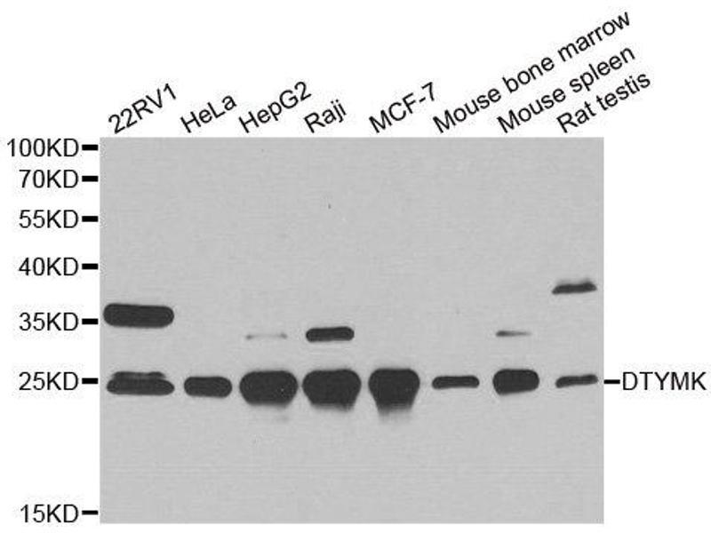 Image no. 2 for anti-Deoxythymidylate Kinase (Thymidylate Kinase) (DTYMK) antibody (ABIN2562301)