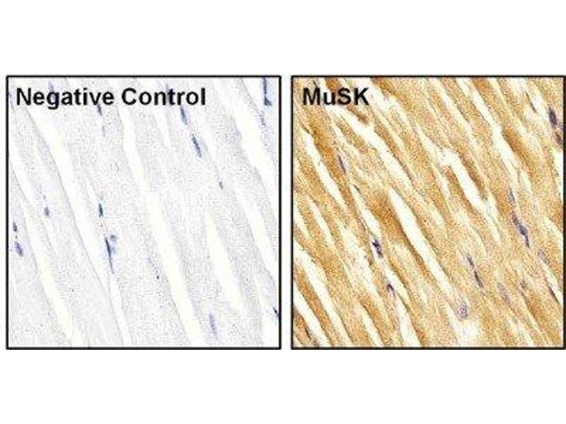 Immunohistochemistry (Paraffin-embedded Sections) (IHC (p)) image for anti-MUSK antibody (Muscle, Skeletal, Receptor Tyrosine Kinase) (AA 210-304) (ABIN267349)