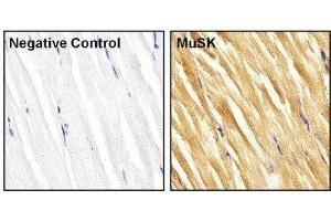 Immunohistochemistry (Paraffin-embedded Sections) (IHC (p)) image for anti-Muscle, Skeletal, Receptor Tyrosine Kinase (MUSK) (AA 210-304) antibody (ABIN267349)