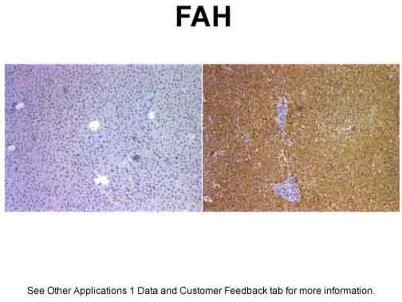 Immunohistochemistry (IHC) image for anti-Fumarylacetoacetate Hydrolase (Fumarylacetoacetase) (FAH) (C-Term) antibody (ABIN310198)