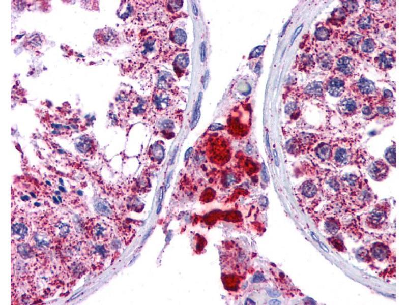 Immunohistochemistry (IHC) image for anti-Surfactant Protein C antibody (SFTPC) (N-Term) (ABIN502129)