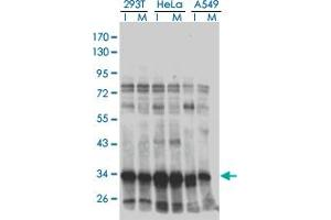 Image no. 2 for anti-High Mobility Group 20B (HMG20B) (AA 1-109) antibody (ABIN564499)