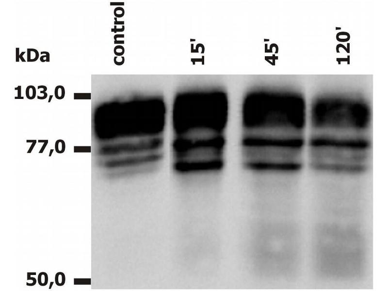 Western Blotting (WB) image for anti-Integrin beta 2 antibody (ITGB2)  (APC) (ABIN125714)