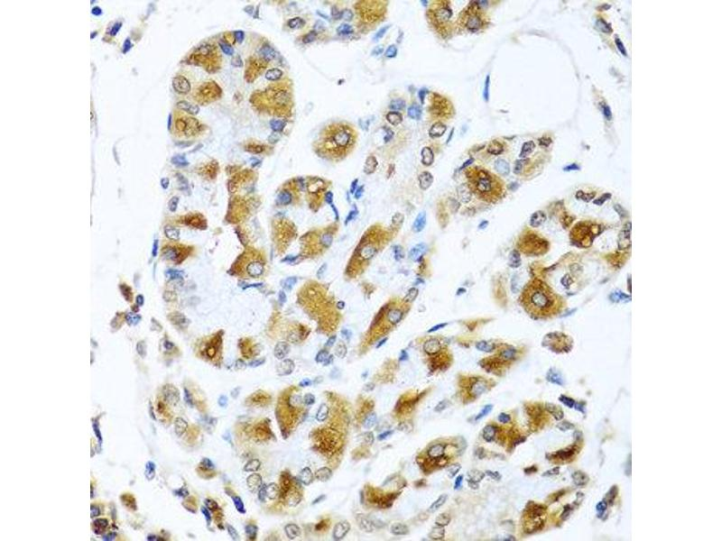Immunohistochemistry (IHC) image for anti-PIAS3 antibody (Protein Inhibitor of Activated STAT, 3) (ABIN2564532)