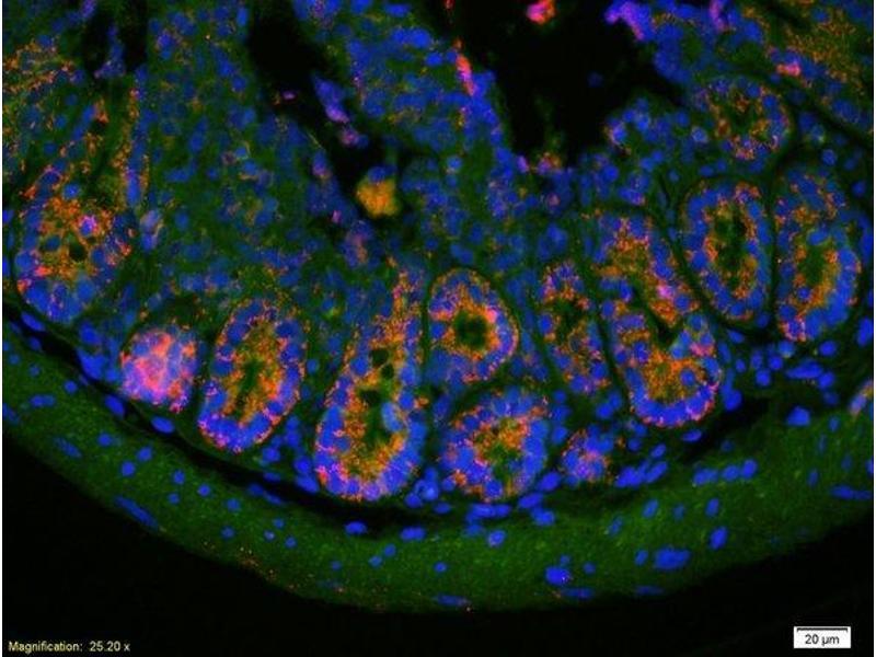 Immunofluorescence (IF) image for anti-serpin Peptidase Inhibitor, Clade E (Nexin, Plasminogen Activator Inhibitor Type 1), Member 1 (SERPINE1) (AA 289-310) antibody (ABIN718106)