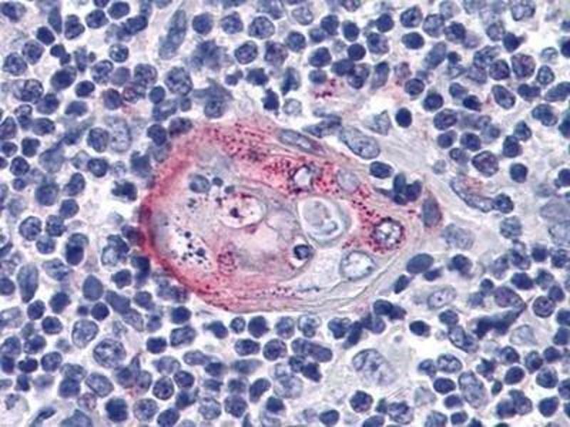 Immunohistochemistry (Paraffin-embedded Sections) (IHC (p)) image for anti-V-Akt Murine Thymoma Viral Oncogene Homolog 2 (AKT2) antibody (ABIN4279055)