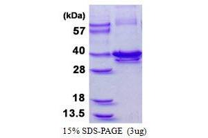 Image no. 1 for Calponin 1 (CNN1) protein (His tag) (ABIN1098634)