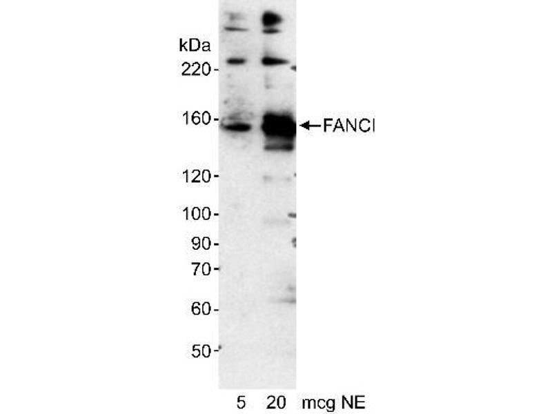 Western Blotting (WB) image for anti-Fanconi Anemia Complementation Group I (FANCI) (AA 200-250) antibody (ABIN152583)