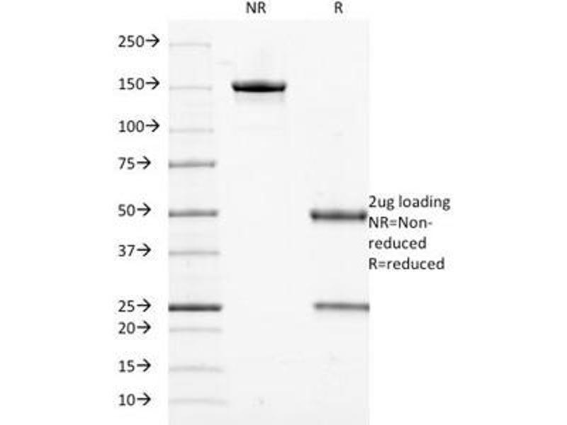 SDS-PAGE (SDS) image for anti-Keratin 18 (KRT18) antibody (ABIN3026958)