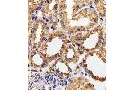 Immunohistochemistry (Paraffin-embedded Sections) (IHC (p)) image for anti-CAPNL1 antibody (Calpain 1, Large Subunit) (ABIN4907386)
