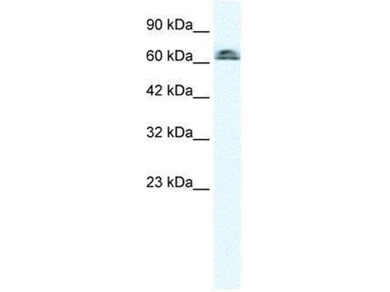 Western Blotting (WB) image for anti-Influenza Virus NS1A Binding Protein (IVNS1ABP) (N-Term) antibody (ABIN4890103)
