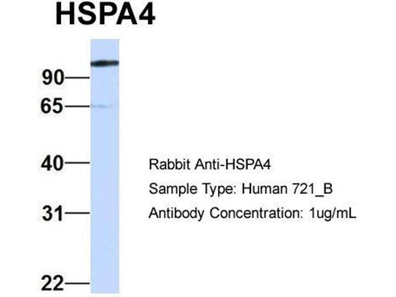 Western Blotting (WB) image for anti-Heat Shock 70kDa Protein 4 (HSPA4) (Middle Region) antibody (ABIN2782468)