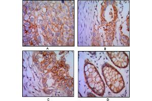 Image no. 2 for anti-Epithelial Cell Adhesion Molecule (EPCAM) antibody (ABIN1576286)