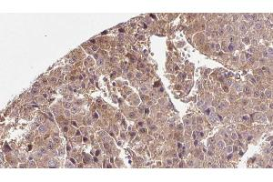 Image no. 1 for anti-Solute Carrier Family 2 (Facilitated Glucose Transporter), Member 3 (SLC2A3) antibody (ABIN6261997)