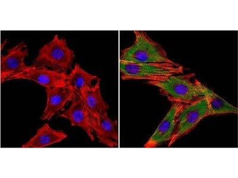 Immunofluorescence (IF) image for anti-MUSK antibody (Muscle, Skeletal, Receptor Tyrosine Kinase) (ABIN267349)