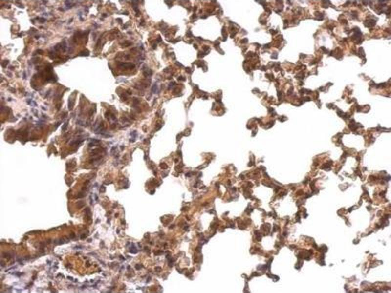 Immunohistochemistry (Paraffin-embedded Sections) (IHC (p)) image for anti-Peroxiredoxin 1 (PRDX1) (Center) antibody (ABIN441016)