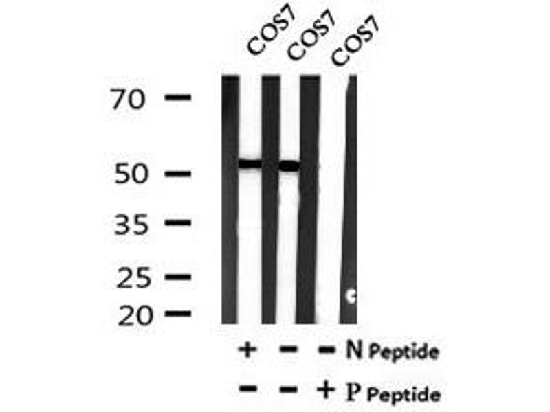 Image no. 3 for anti-Microphthalmia-Associated Transcription Factor (MITF) (pSer516) antibody (ABIN6269699)