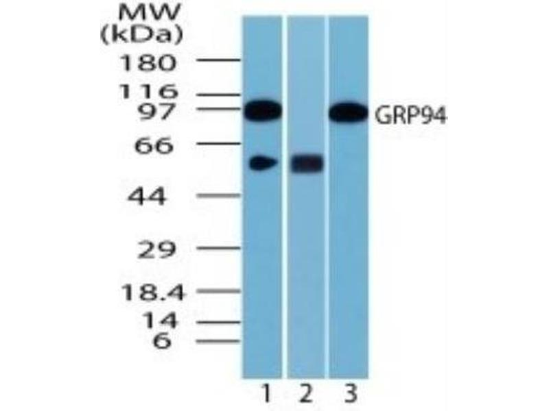 Western Blotting (WB) image for anti-Heat Shock Protein 90kDa beta (Grp94), Member 1 (HSP90B1) (Internal Region) antibody (ABIN4315469)