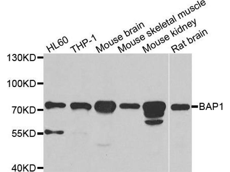 Image no. 1 for anti-BRCA1 Associated Protein-1 (Ubiquitin Carboxy-terminal Hydrolase) (BAP1) antibody (ABIN2561329)