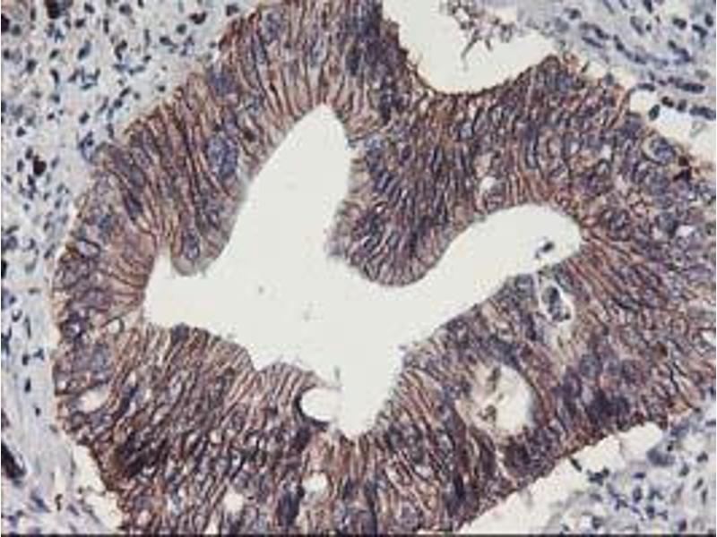image for anti-Arachidonate 15-Lipoxygenase (ALOX15) antibody (ABIN1496359)